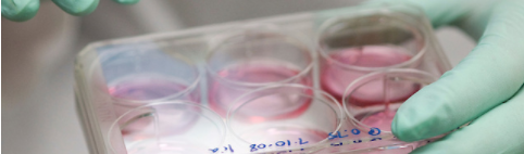 Stem cells in a lab dish